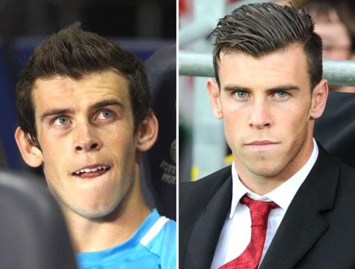 Diferença de visual em 2011, antes da cirurgia, e em 2013, depois. (Foto: Globo.com)